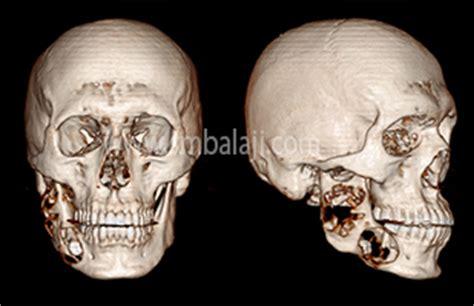 balaji dental  craniofacial hospital dr sm balaji