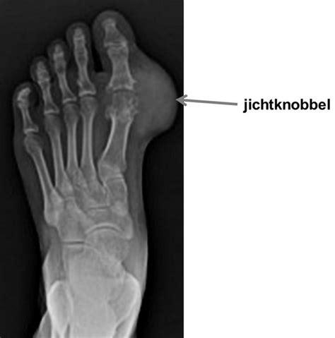 jichtknobbel voet