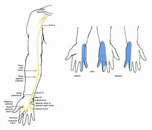 Diagram Of The Muscular And Cutaneous Branches Of The Ulnar Nerve  The Smaller Drawing Shows The