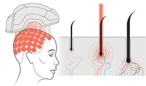 Laser gegen haarausfall erfahrung