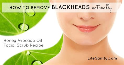 How To Remove Blackheads Naturally  Life Sanity