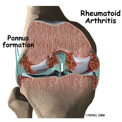 Doe Rã Sumã by Rheumatoid Arthritis Eorthopod