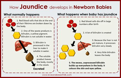 What Is Jaundice In Babies Symptoms Causes And Treatment