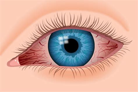 17 Red Eye Causes And How To Treat Red Eyes
