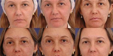 face gallery head  toe med spa