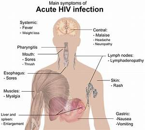 Signs and symptoms of HIV/AIDS - Wikiwand
