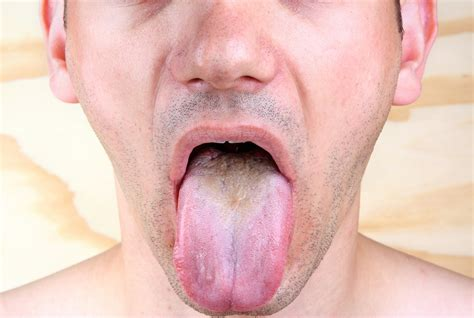 3 Colors Your Tongue Should Not Be Infographic Health