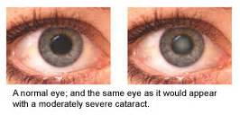 studies have shown that the unique ingredients in Vision Clarity Eye ...  Glaucoma Eyes and Vision