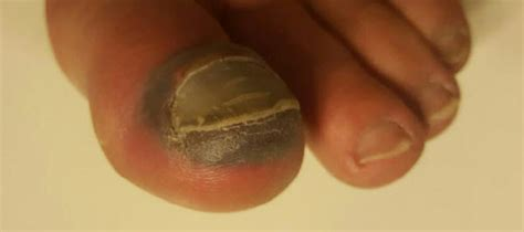 dropped  heavy   big toe   fractured