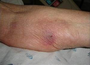 Thrombophlebitis - Symptoms, Pictures, Causes, Treatment ...  Superficial