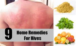 top 9 effective home remedies 9 effective home remedies for hives treatments