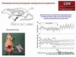 Гипертония санатории кардиологического профиля