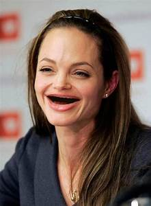 1000+ images about Celebrities with no teeth on Pinterest ...