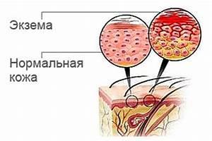 Король кожи мазь для лечения псориаза и экземы