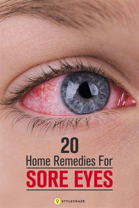 sore eyes remedies eye dry burning treat natural headache irritated effective irritation rid feel help treatments