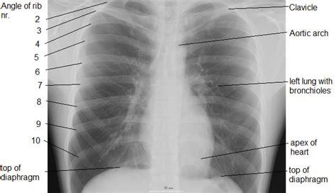 anatomy  microscopy uk human lungs