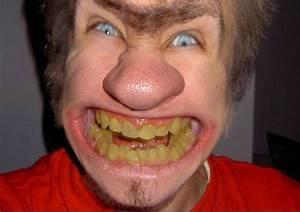 Ugly People - worlds ugliest People