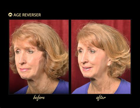 Look Years Younger Without Surgery - Age Reverser