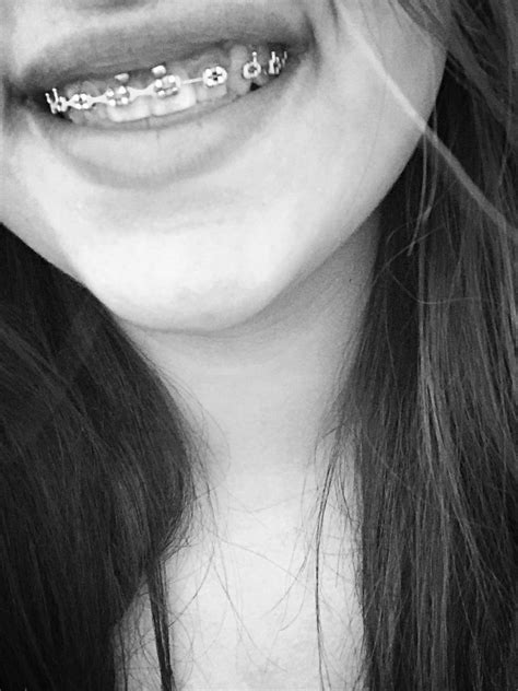 Smiley piercing with braces   Piercings, Smiley piercing