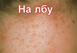 Плоские бородавки на лице лечение мазь