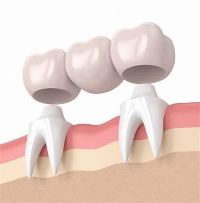 Dental Bridge Bridges Braces Dentistry Essendon Bluebird