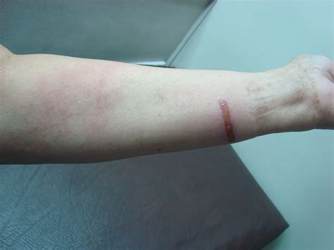 Cellulitis Pictures To Pin On Pinterest Pinsdaddy