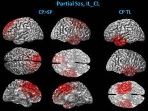 epilepsy scientists find    pinpoint seizure area