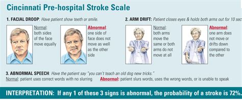 Cincinnati Prehospital Stroke Scale  Nurses Zone. Symbol Decals. Music Banners. Clinical Signs. Vascular Signs Of Stroke. Placard Kit. Character Disney Stickers. Feeling Stickers. Parade Signs Of Stroke