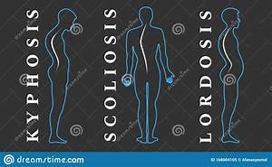 Back  A Scoliosis Of The Fourth Degree Cartoon Vector