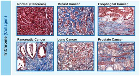 transplant drug  improve immunotherapy  breast