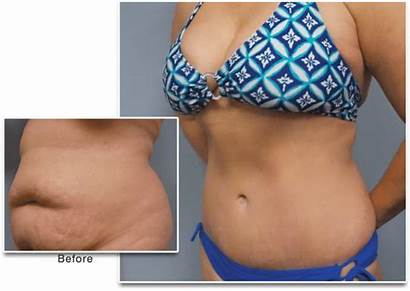 Mommy Makeover Cellulite Breast Augmentation Lift Liposuction
