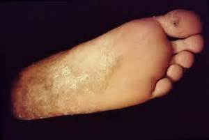 athl foot 1 athletes foot 2 athletes foot 3 dermnet  Tinea Infections Athlete's Foot