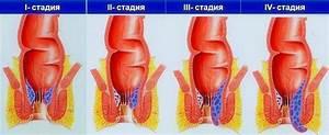 Лечение геморроя свечами гепатромбин