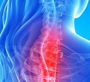 Средства для лечения артроза и артрита