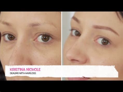 Makeup For Chemo Patients- Filling In Your Eyebrows - YouTube