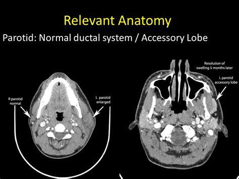 relevant anatomy  sialendoscopy april   columbia