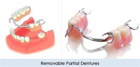 dentures st lucie center  cosmetic dentistry