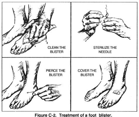 Foot Blister Diagram by Causes Of Foot Blisters