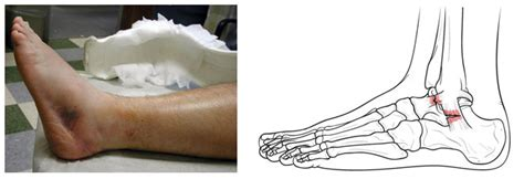 anatomy   ankle sprain bouldercentre  orthopedics