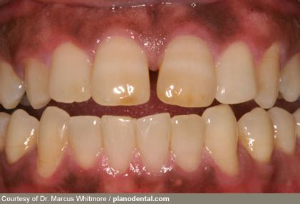 healthy gum color what your teeth and gums say about your health with pictures