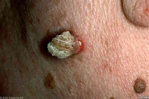 Papular, Papulosquamos and Papulo-Vesicular Skin Lesions ...