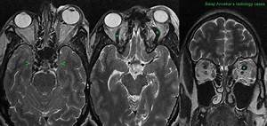 Sinus Mri Brain Images
