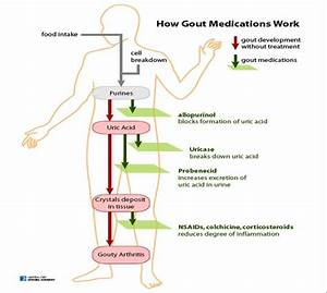 Get To Know What Is Gout