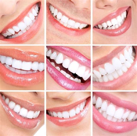 hollywood fl porcelain dental veneers south florida