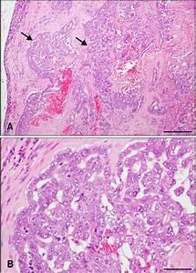 Canine Mammary Gland Tumor From Mammary Tissue  Mixed