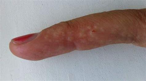Dyshidrotic Eczema Home Remedies by Dyshidrotic Eczema Or Dyshidrosis Is A Skin Condition In