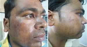 Oral tranexamic acid with fluocinolone-based triple ...