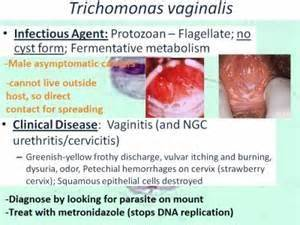 STD Trichomoniasis: All You Need to Know - Public Health
