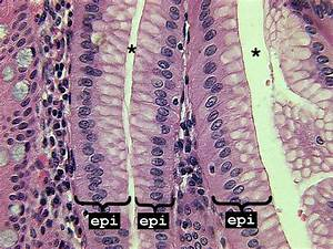 Chapter 02, Page 11 - HistologyOLM 4.0