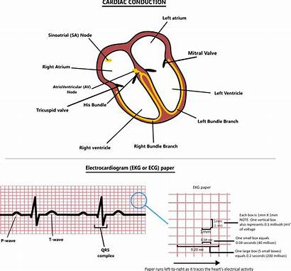 Conduction Cardiac Recommend